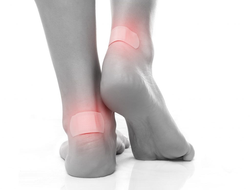 How to prevent blisters on the foot?