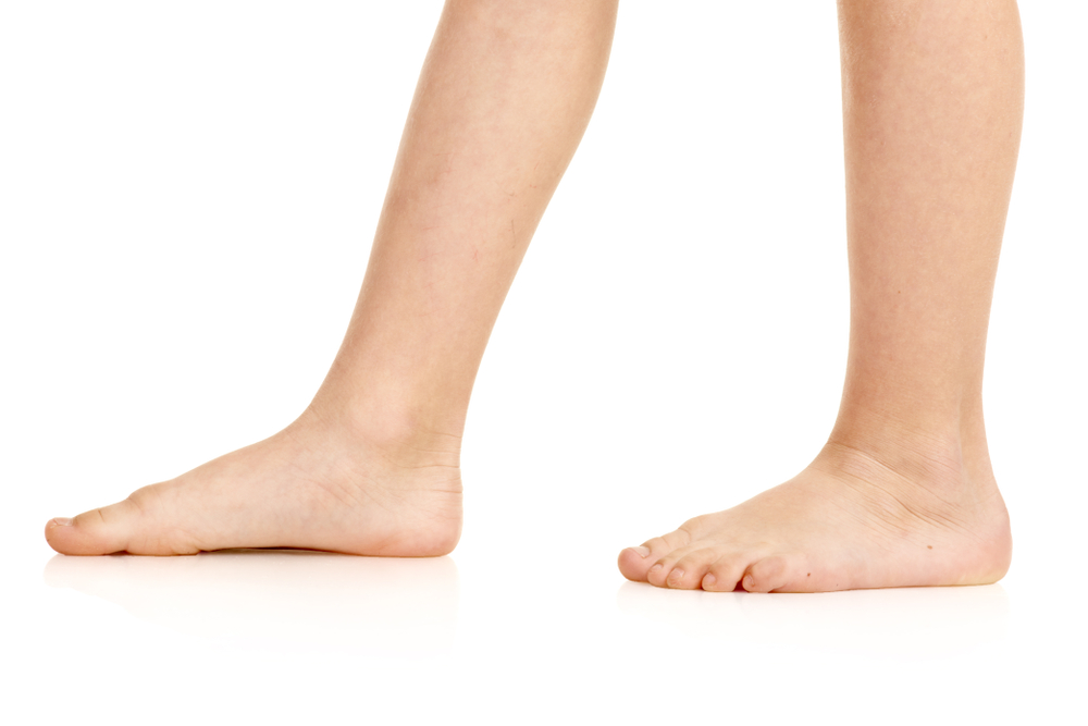 Flat feet: pains and treatments