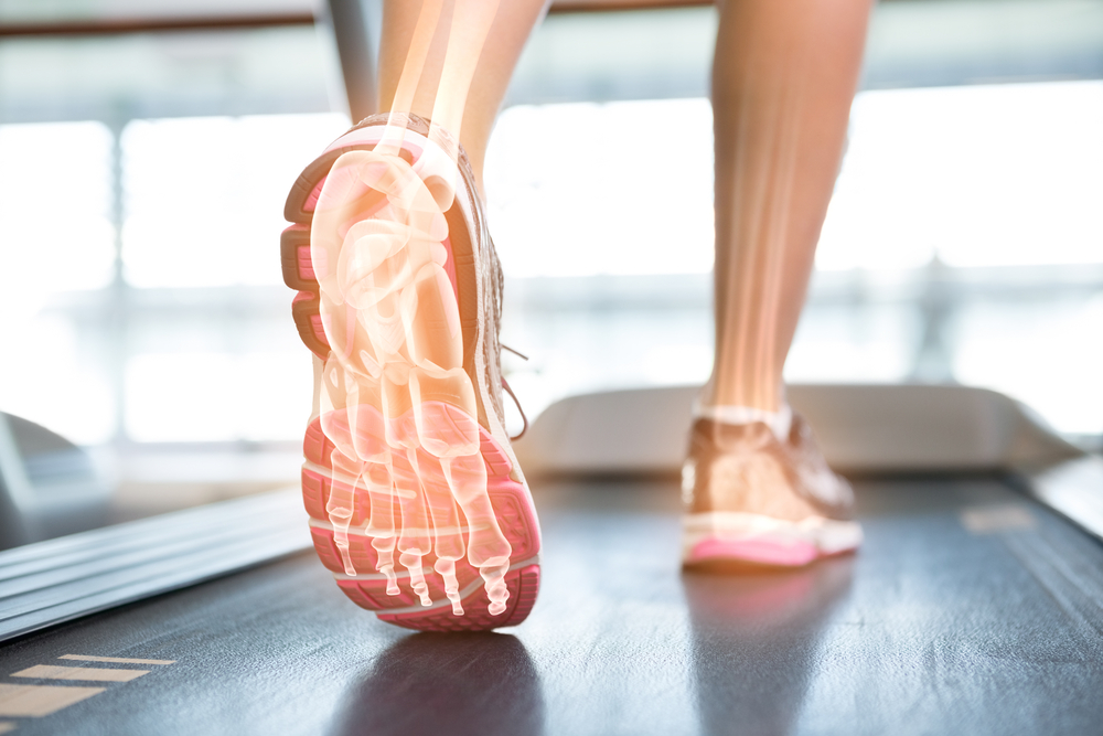 Cavus foot: tips to continue playing sports without pain