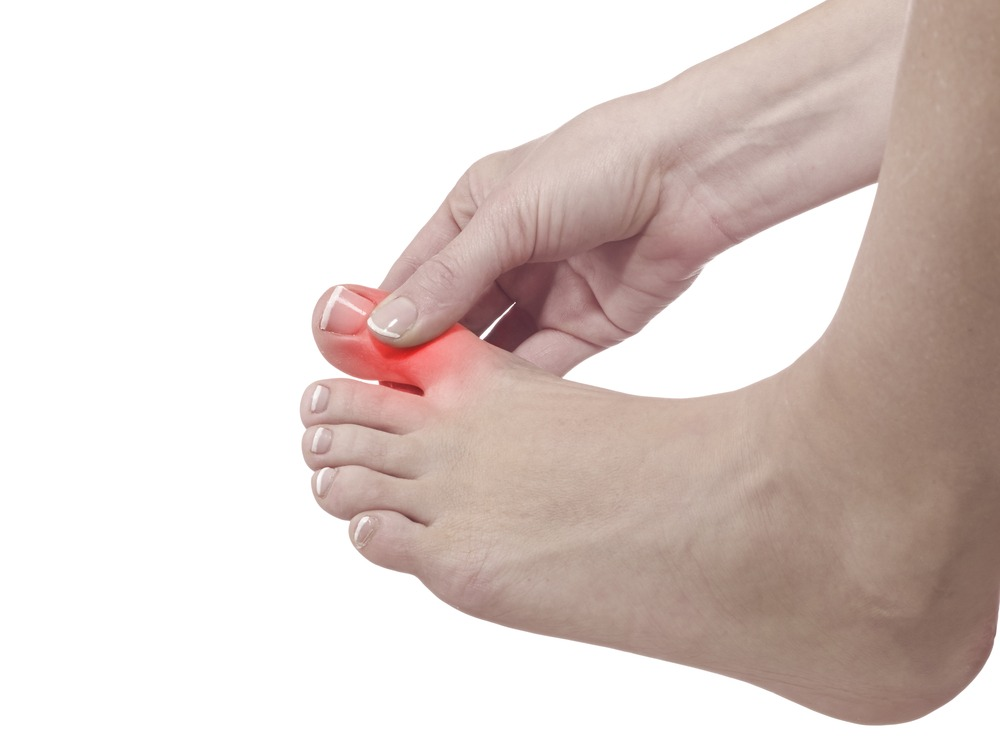 4 home remedies for gout in the foot