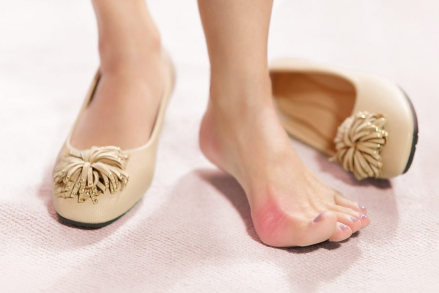 How to get rid of a bunion?