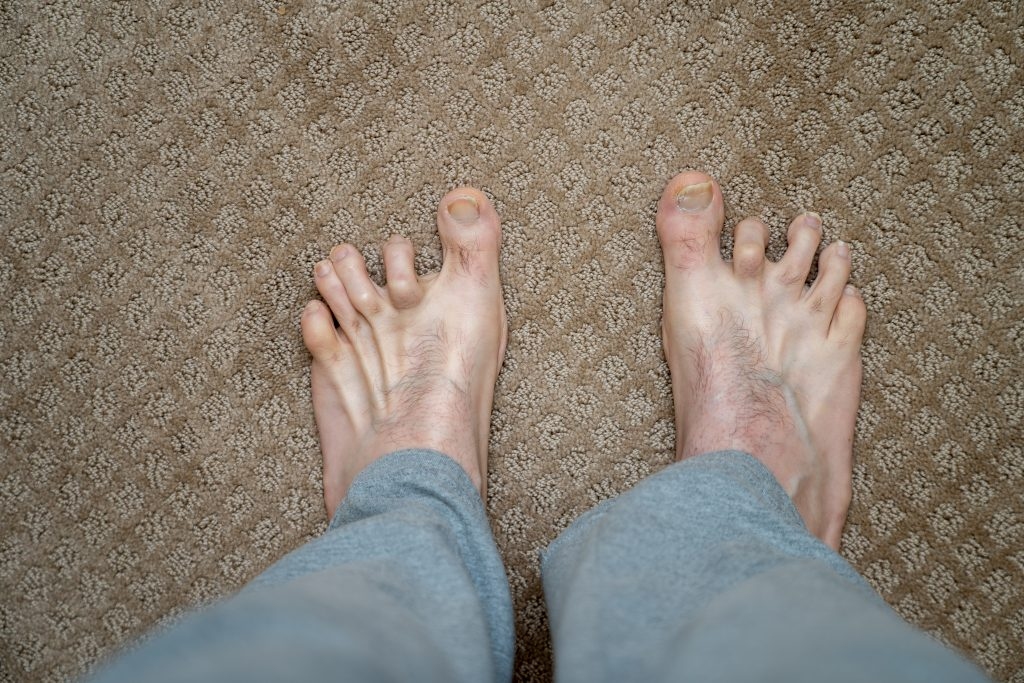 How to prevent or relieve hammertoes?