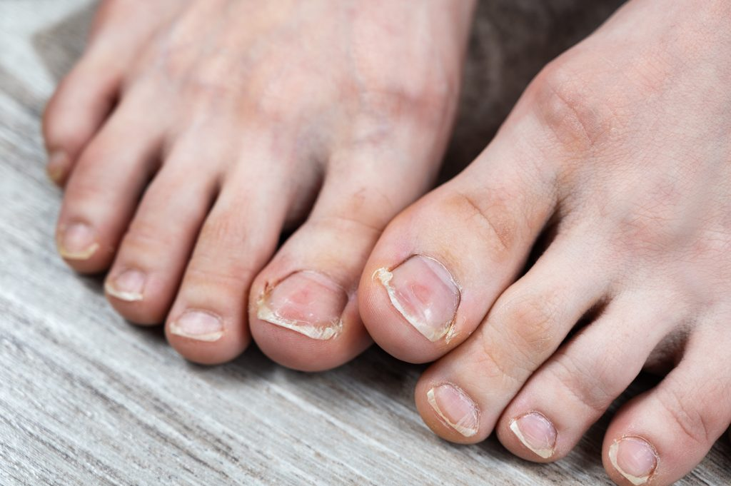 How to prevent and treat ingrown toenails?