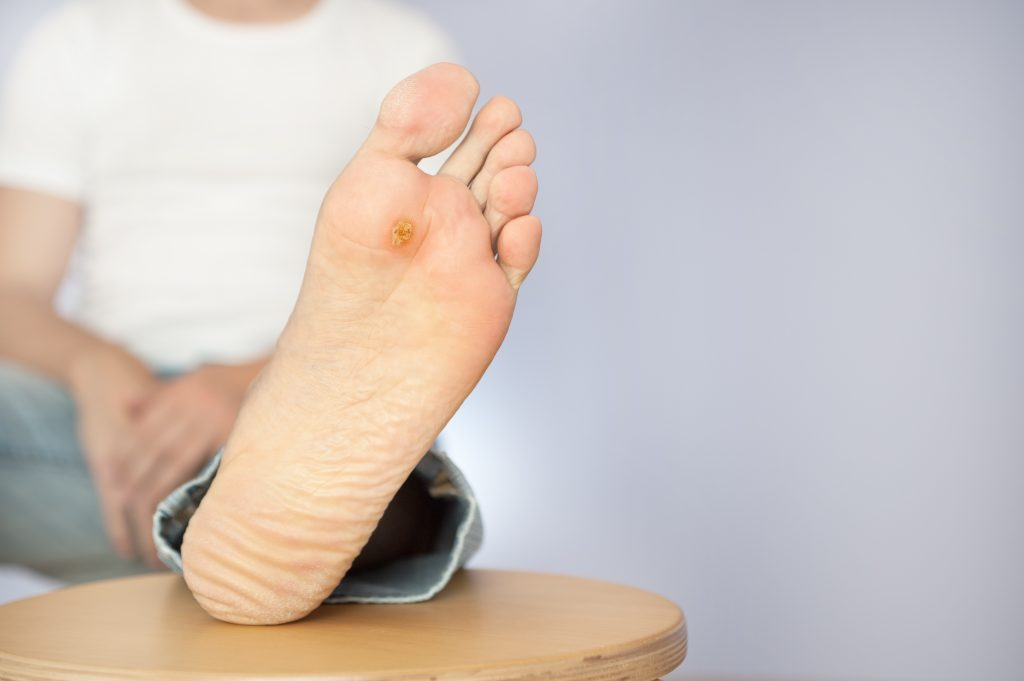 Callus or plantar wart, what's the difference?